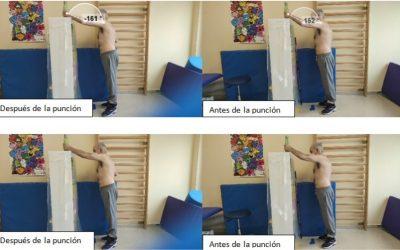 Fisioterapia: la técnica DNHS empieza a utilizarse en Trujillo
