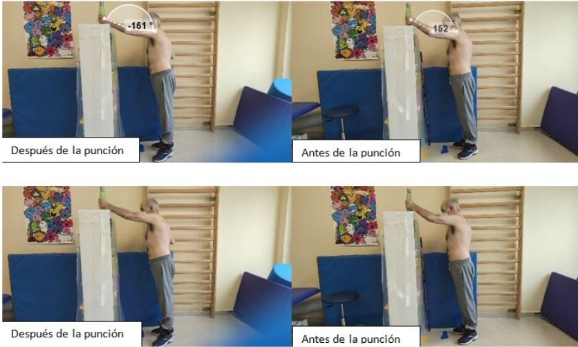 Fisioterapia, técnica DNHS, ASPACE Cáceres